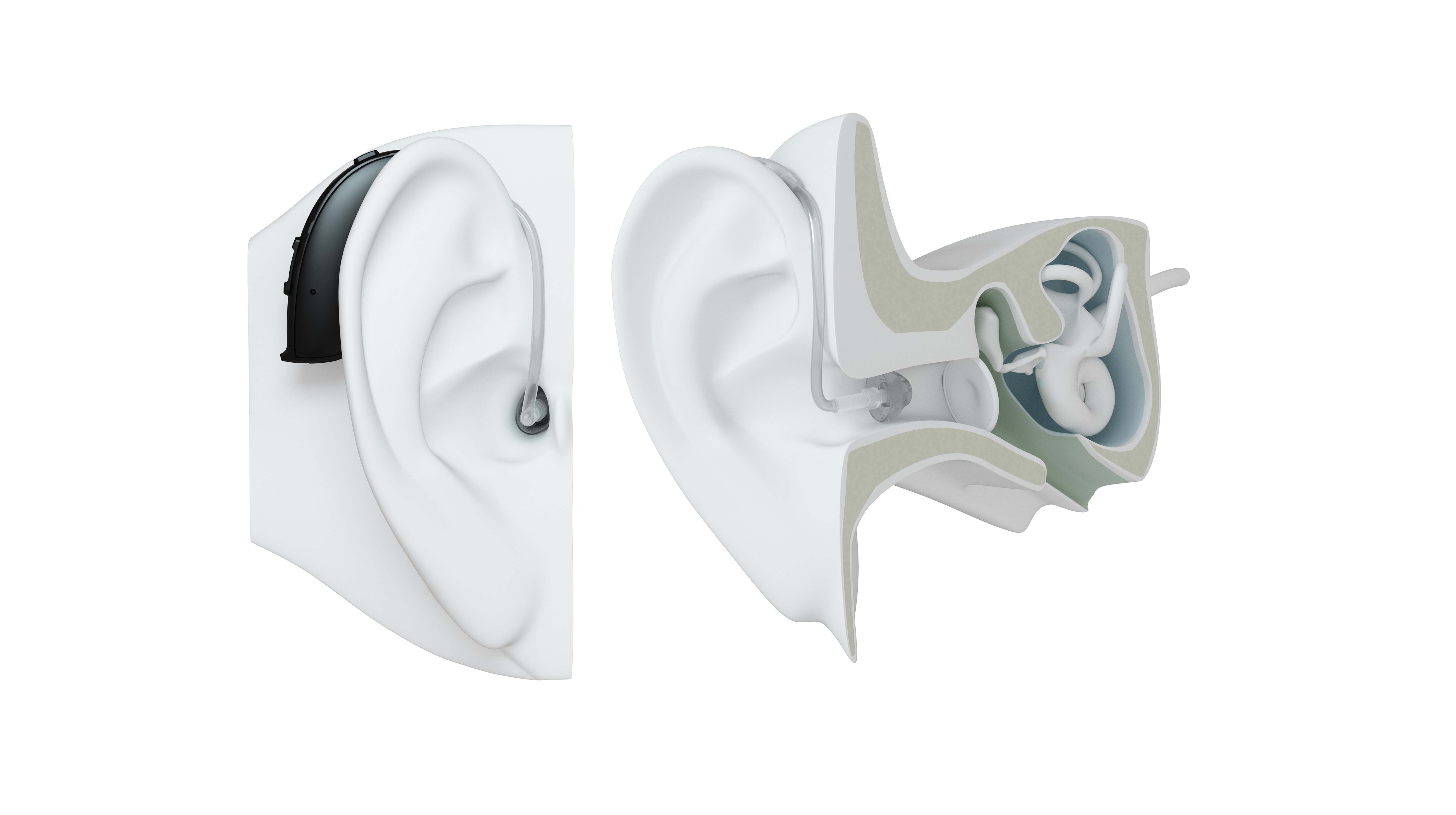 BTE hearing aid style on ear.