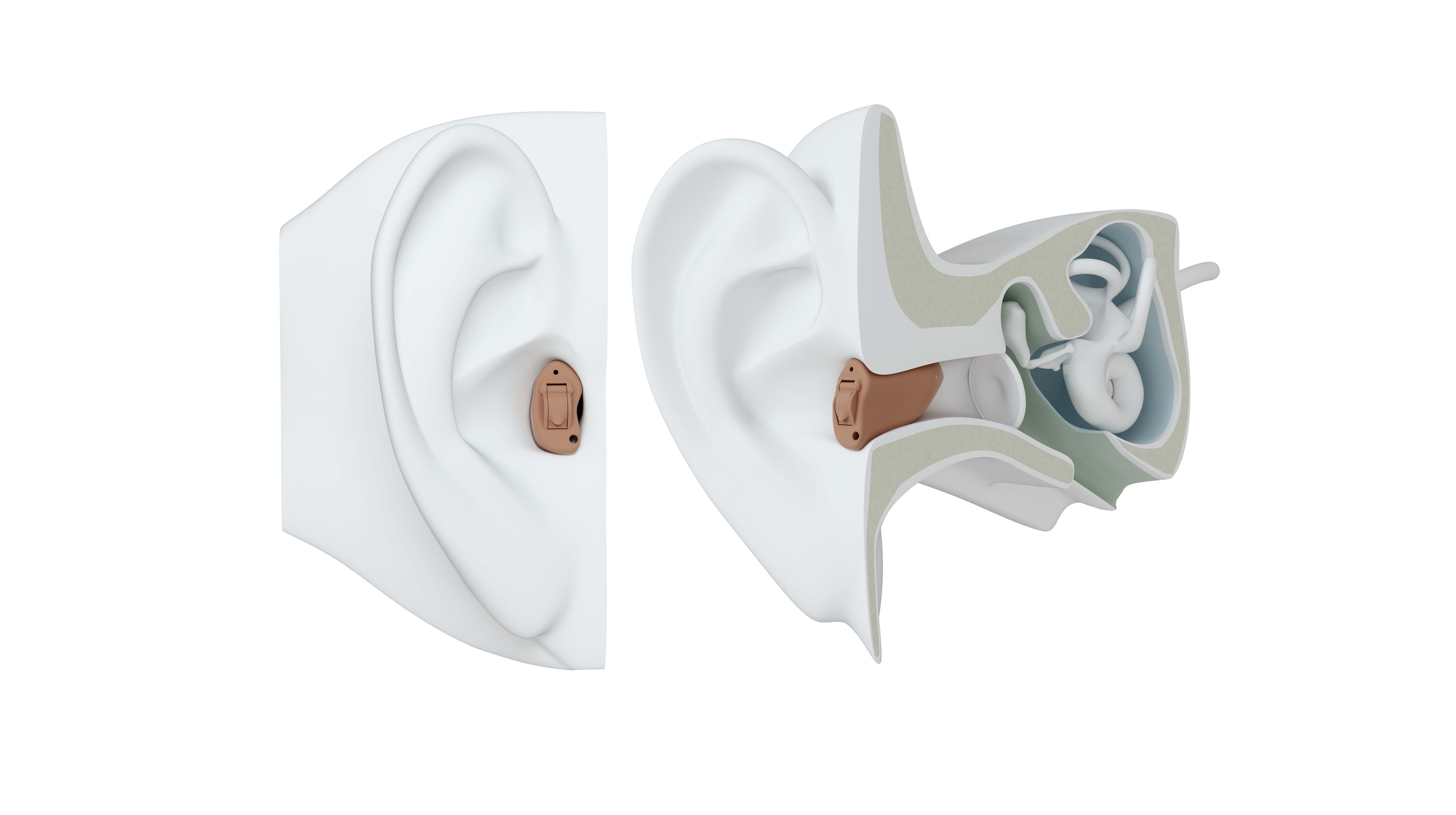 CIC hearing aid on ear.