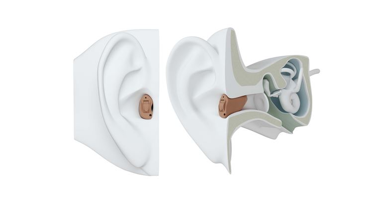 CIC hearing aid on ear.