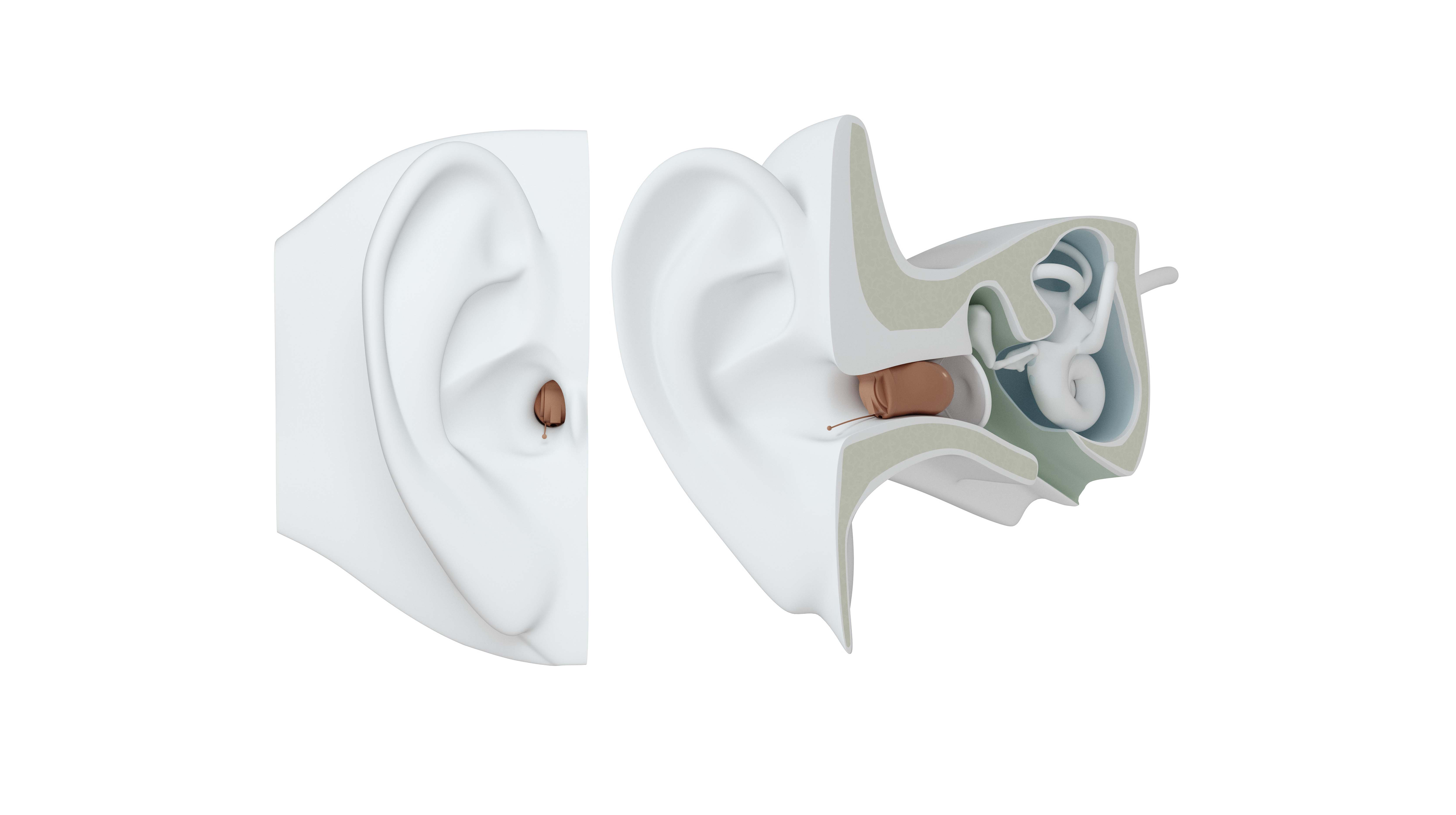 IIC hearing aid on ear.
