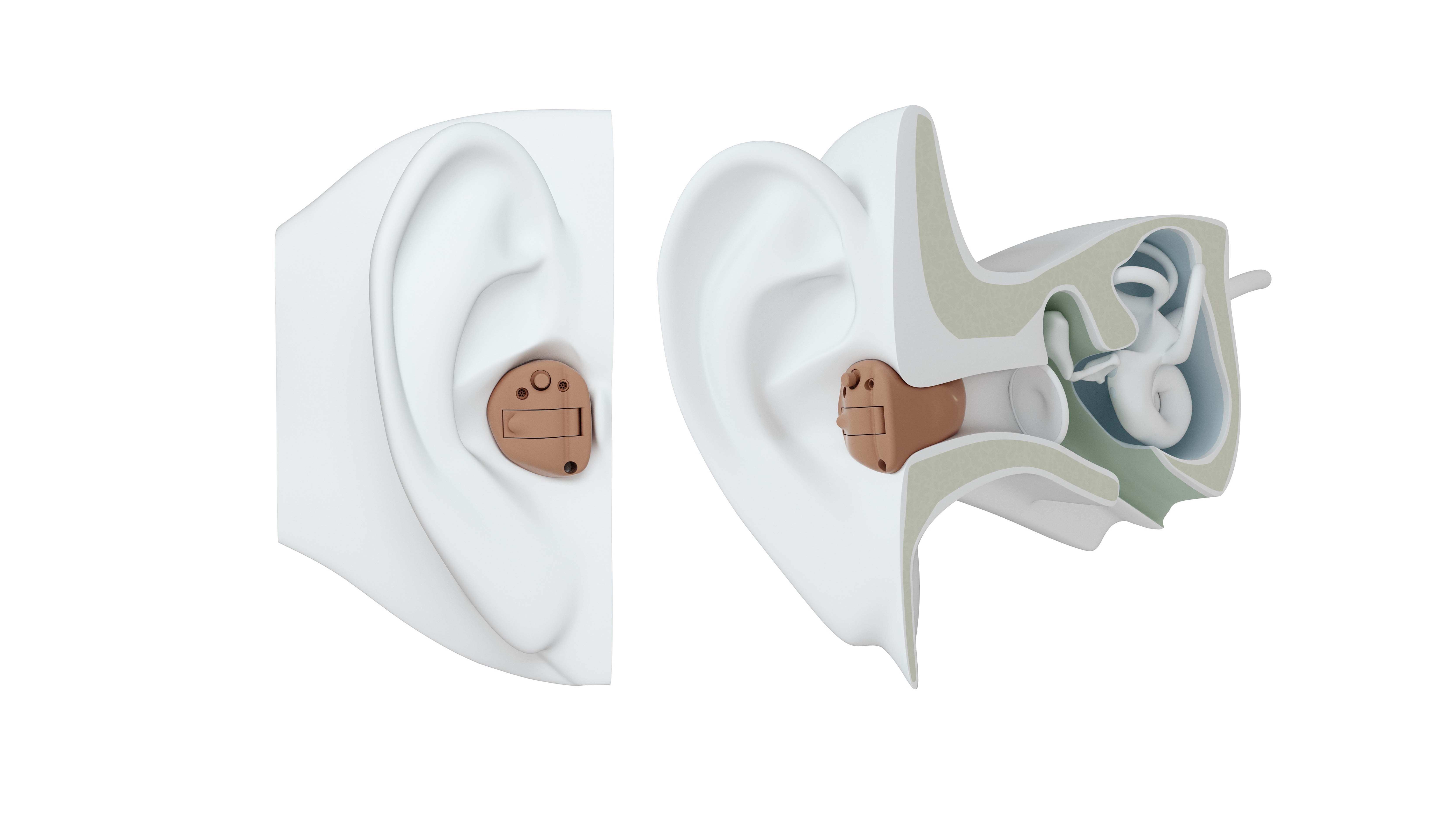 ITC hearing aid on ear.