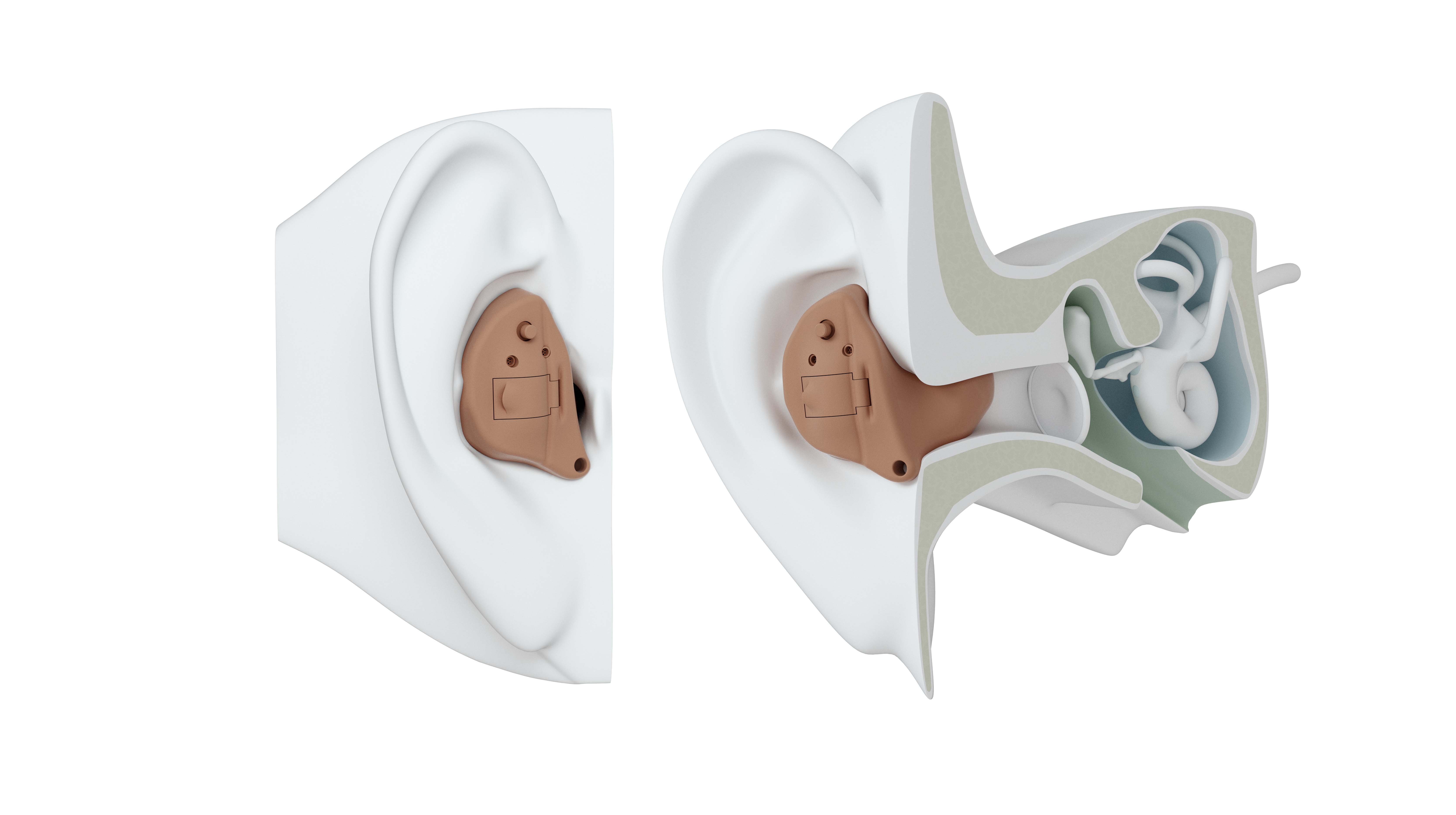 ITE hearing aid on ear.