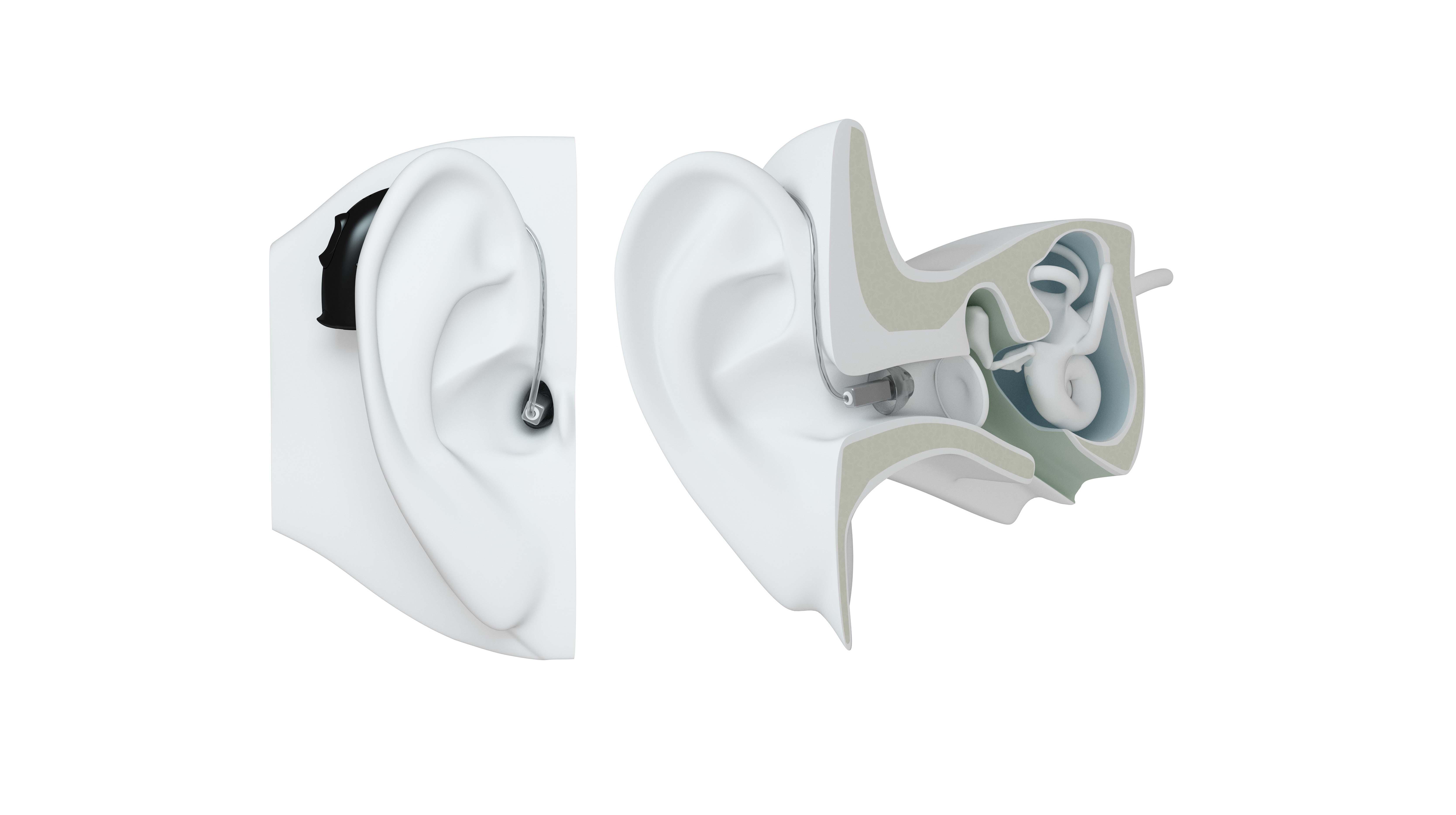 RIE hearing aid on ear.