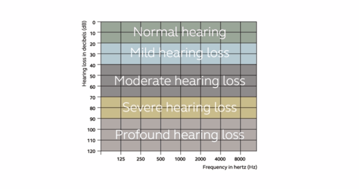 Levels of hearing loss video thumbnail.